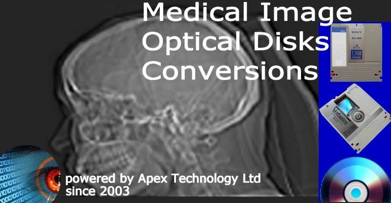 Dicom and Angiogram MO Optical Disk Conversions
