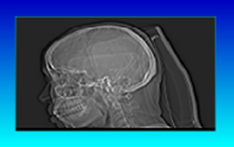 DICOM images stored on an MO disk that had been used in a CT scanner.
